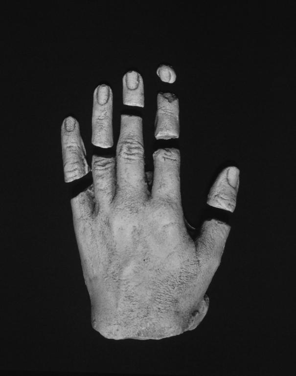 """""""Hanne's Broken Hand 1"""" ($575)"""